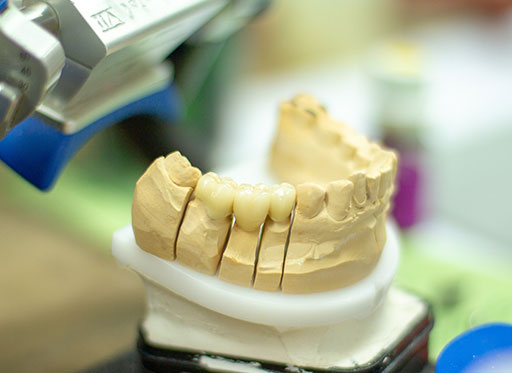 Neue Broschüre zu Zahnersatz