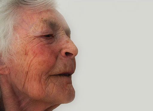Prothesenreinigung und Mundhygiene bei Pflegebedürftigen